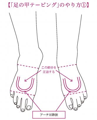 「足の甲テーピング」のやり方①