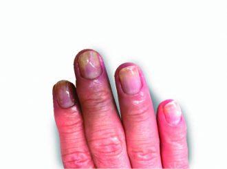 爪甲剥離&白い凹み(尋常性乾癬の可能性)