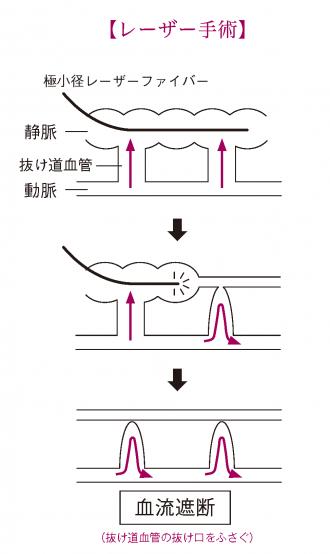 レーザー手術
