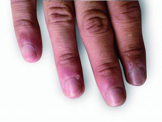 逆 剥け 原因 爪や皮膚のささくれができる原因とケア方法 Calgelist