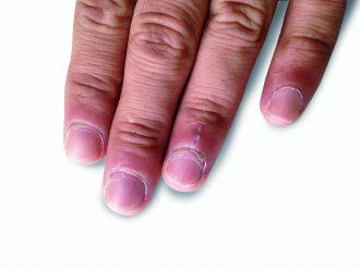 逆 剥け 原因 爪に起こりやすい症状(割れやすい・縦線・横線・二枚爪・白い斑点)...