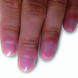 逆 剥け 原因 【医師監修】体調不良のサイン?痛い指のささくれの原因や悪化による...
