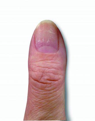 爪の凹凸・割れやすい爪