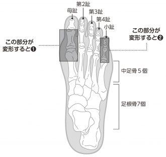 小さな骨が集まる「足を構成する骨」