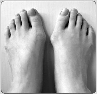 医師監修】足のトラブルが急増中!気になる人は今すぐ外反母趾